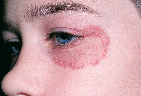 Facial ringworm is an uncommon infection, and it can arise from contact with several sources.