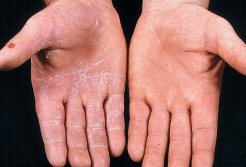 Ringworm of the hand (tinea manus)