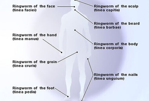 Multiple forms of ringworm affect different parts of the body.