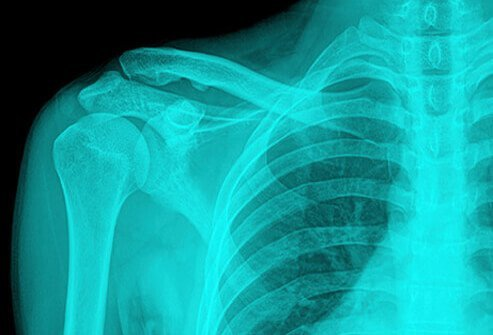 An x-ray of the shoulder.