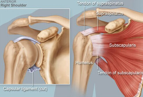 An illustration of the shoulder joint and tendons.