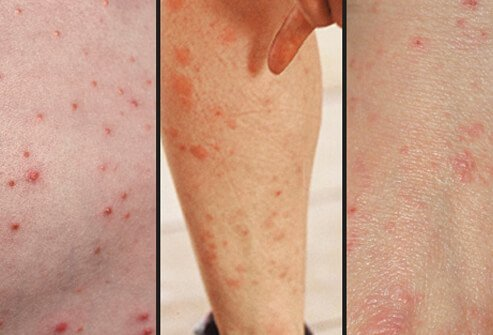 Images of acne (left), mosquito bites (center) and scabies (right). Early case similarities between the three can sometimes lead to misdiagnosis.