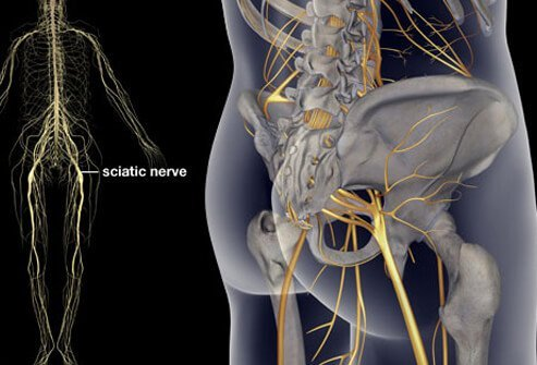Illustration of sciatica.