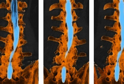 A CT scan of the spine shows spinal stenosis.