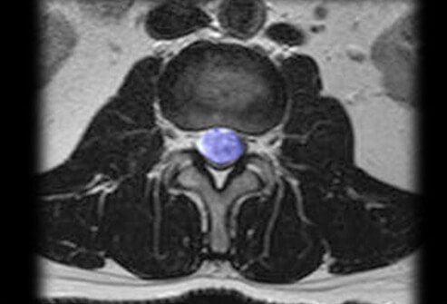 MRI of a spinal tumor.
