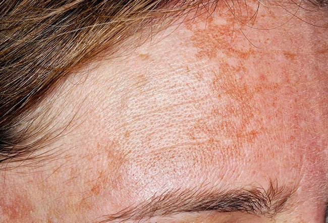 Photo of melasma.