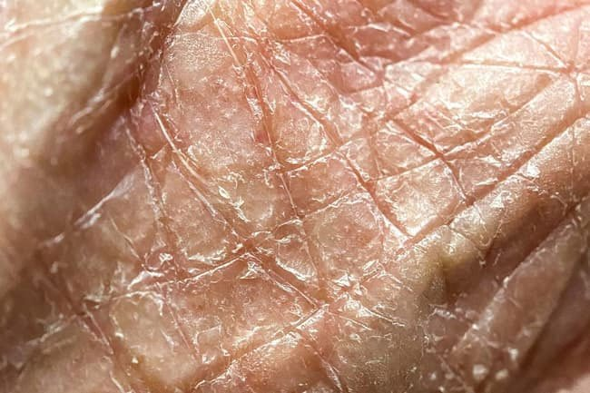 Dry skin lacks oil while dehydrated skin doesn't have enough internal moisture.