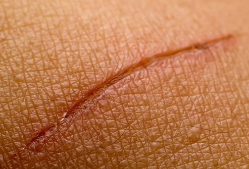 Lack of vitamin C can lead to slower wound healing.