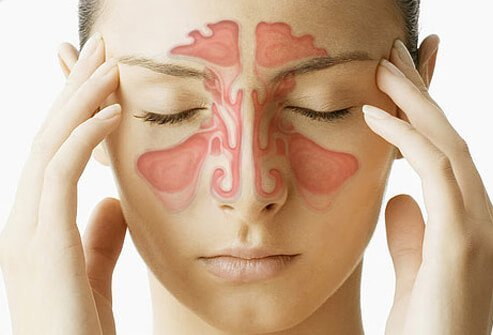 Sinus problems and sinus-related symptoms are common reasons people see their doctors.