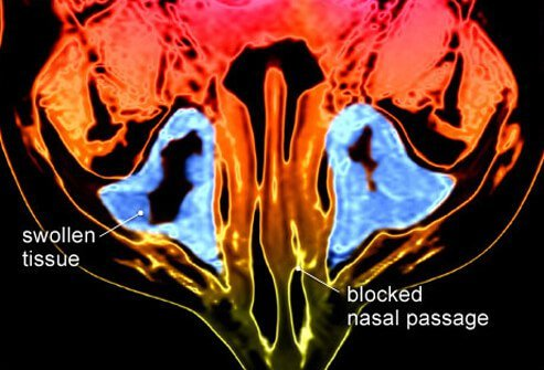 Chronic sinusitis is defined as inflammation of the sinuses that lasts for more than three months.