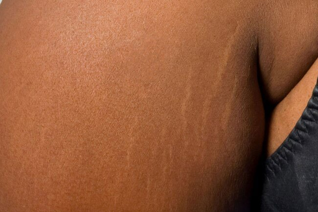 If your stretch marks are old, a cream, oil, or gel isn't likely to get rid of them.