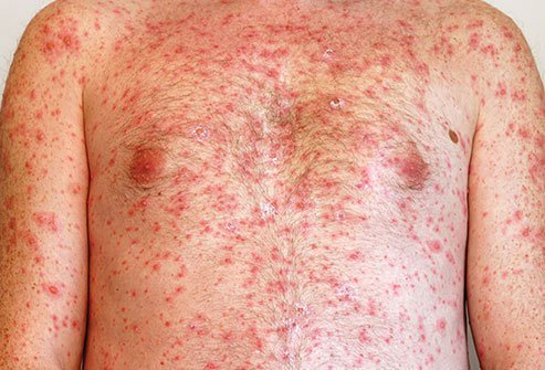 Chickenpox produces an itchy rash that is highly contagious.