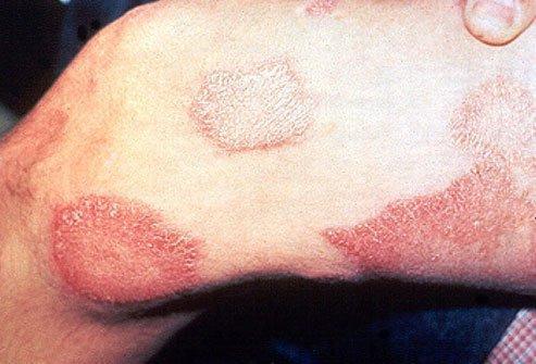 Leprosy is a very slow-growing bacterial skin infection.