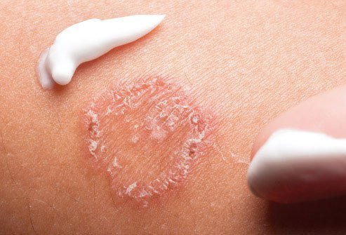 Skin infections are treated with medication.