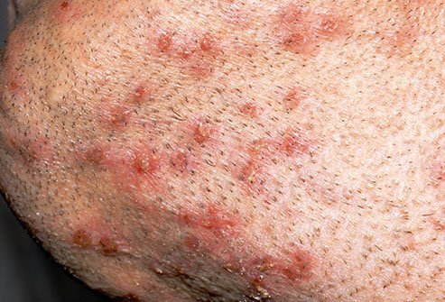 Folliculitis causes inflamed, itchy bumps.