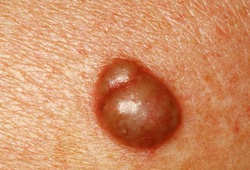 Cysts are common lumps below the epidermis that can be filled with pus, air, fluid, or other material.