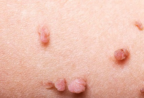 Skin tags are flesh-colored growths and are more of a cosmetic issue rather than a health concern.
