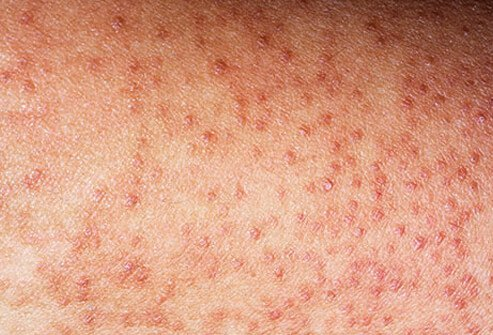 Keratosis pilaris are tiny, rough bumps made up of dead skin cells that tend to mostly appear on the buttocks and front thighs.