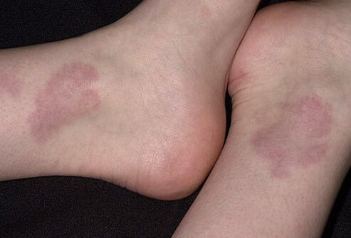 Granuloma annulare (raised, reddish, or flesh-colored bumps) on the feet of a patient.