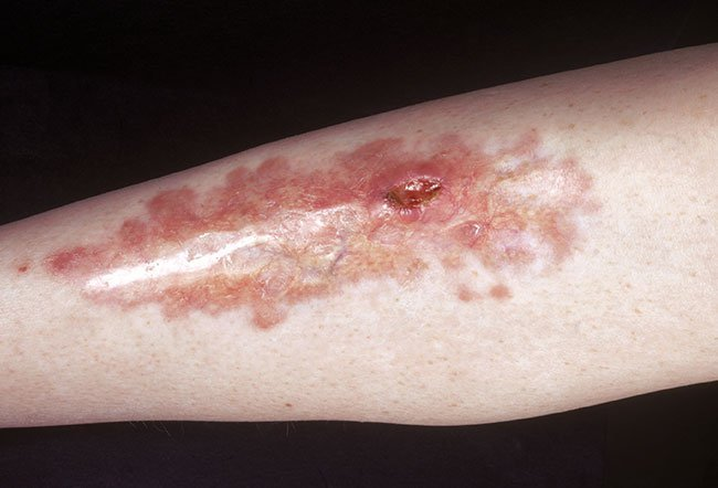 Leg plaque or necrobiosis lipoidica diabeticorum is a distinctive sign of diabetes.