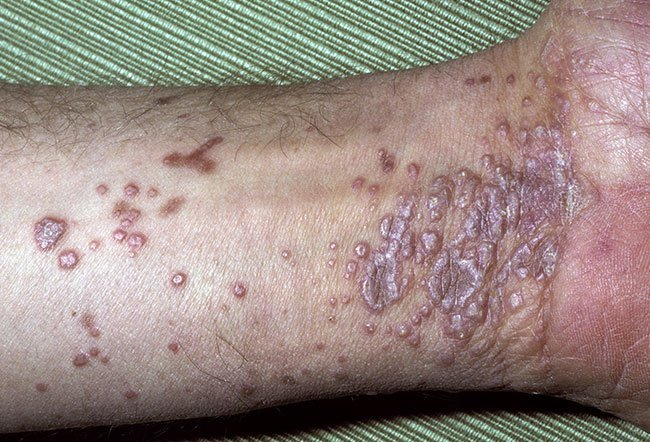 Itchy, violet bumps on the wrist (lichen planus) could be a sign of hepatitis C.