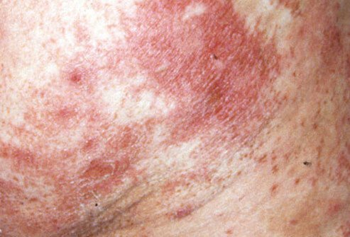 Necrolytic migratory erythema is a scaly rash on the buttocks. It is also known as red tongue and usually signals a pancreatic tumor.