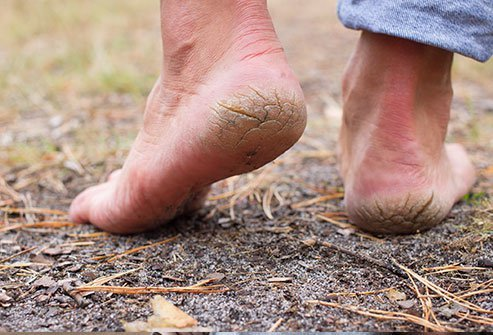 A pumice stone can slough off dried and thickened skin.