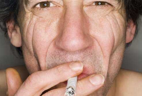 These wrinkles also tend to be deeper in those who smoke.