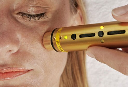 Some ex-smokers opt for cosmetic procedures to improve their damaged skin.