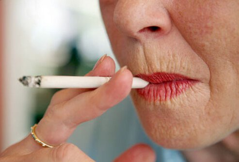 A woman with lines around her lips smoking.