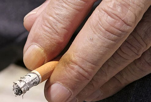 Tobacco stains the skin of the nails and hands. This can be a telltale sign of a chronic smoker.