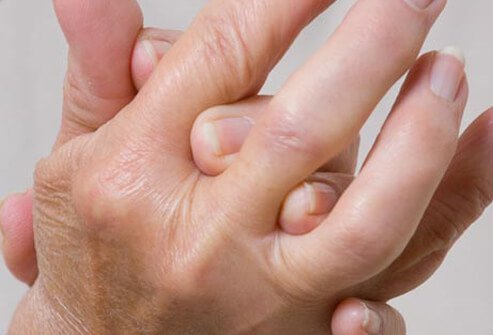Photo of arthritic hands.