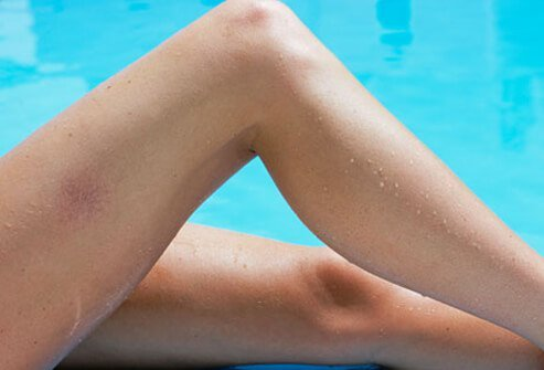A photo of spider veins on a woman's legs by the pool.