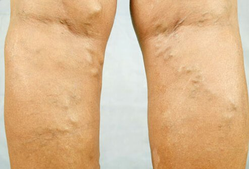 Varicose veins on a woman's legs.