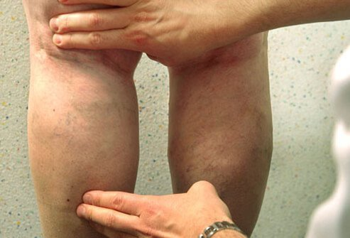 A doctor examines varicose and spider veins on a woman's legs.