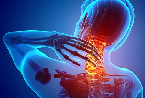 As you age, your spine may begin to grind against nerve roots in your neck, causing clumsiness and other health problems.