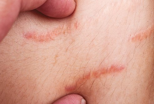 When elastic fibers in your skin tear it creates stretch marks.