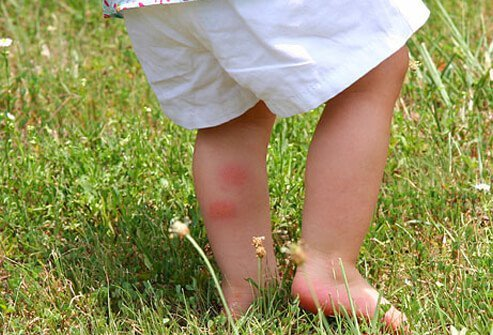 Chigger bites produce red, itchy welts on the skin.