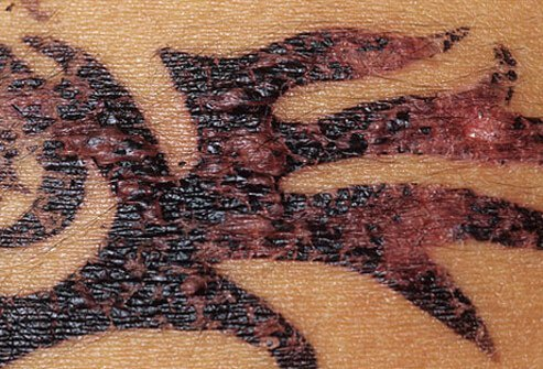People complain to the FDA that they experience skin irritation or even allergic reactions to temporary henna tattoos.