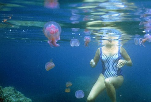 Swimmer surrounded by floating jellyfish