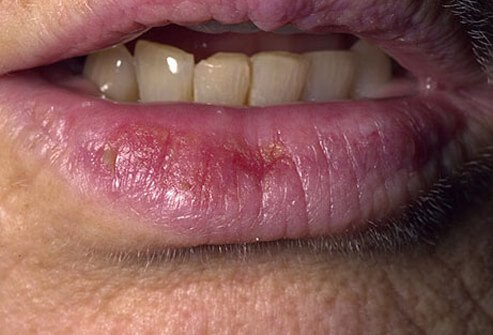 A photo of actinic cheilities on the lower lip.
