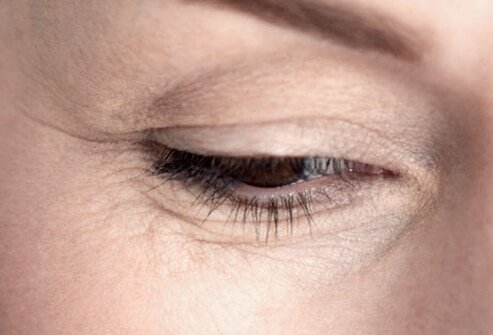 A photo of lines and wrinkles around a woman's eye.