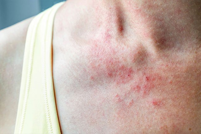 Eczema is an allergic skin rash and a sign of an overactive immune system.