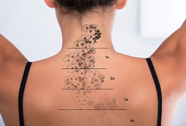 Dermabrasion and laser tattoo removal.