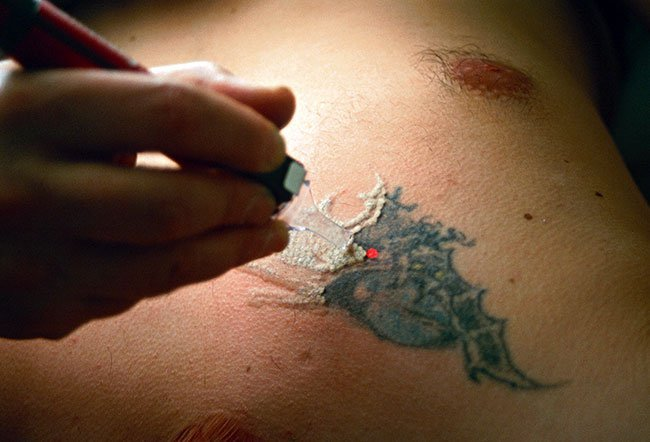 Tissue whitening after laser tattoo removal.