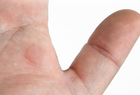Photo of blister on hand.