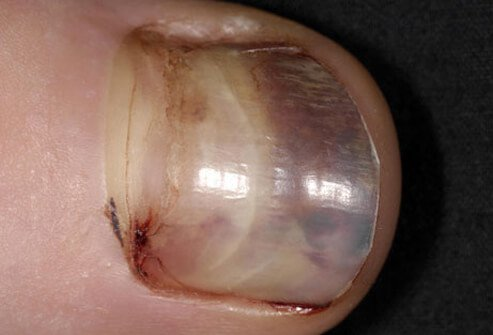 Photo of runner's black toenail.