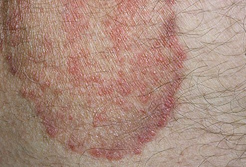 Photo of jock itch rash.