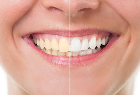 A close up comparison of discolored teeth to white teeth.