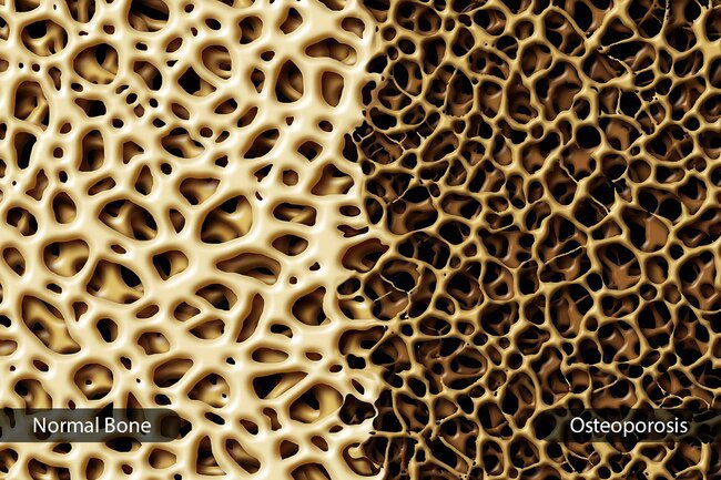 People with more belly fat have low bone density, a warning sign of osteoporosis.